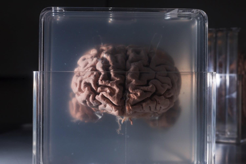 Стартап дня: заморозить мозг, чтобы жить вечно